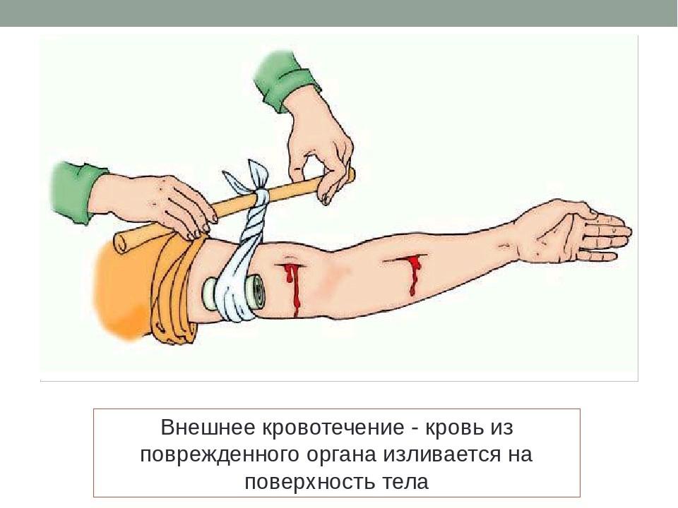 arterialnoe-krovotechenie