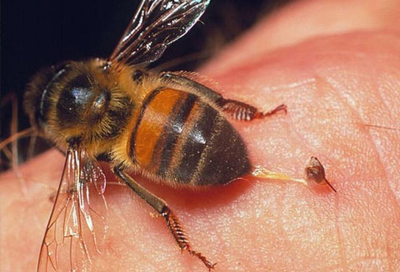 Болезни от укусов насекомых: виды, лечение, народная медицина
