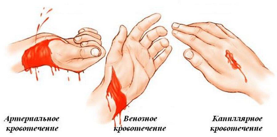 naruzhnoe-krovotechenie